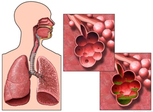 Kardiyüürüroz: semptomlar, nedenler, teşhis ve tedavi yöntemleri 15
