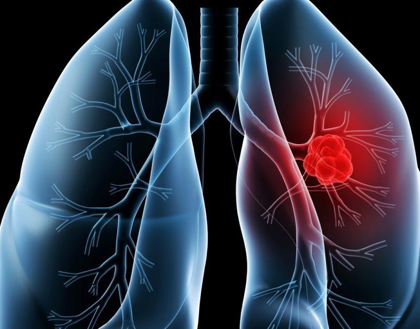 Akciğer kanaması