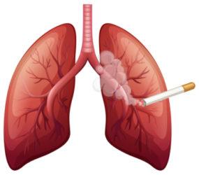 Akciğer Kanserinin Lenf Bezlerine Sıçramasının Belirtileri