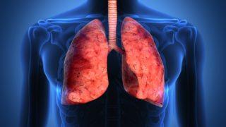 Akciğer kisti