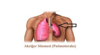 akciğer sönmesi