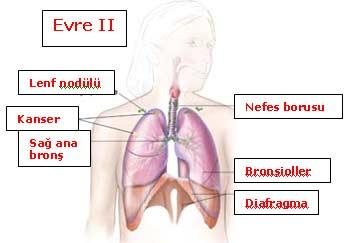akciğer lekelenmesi