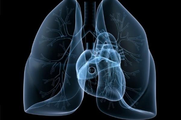 Büyük hücreli akciğer kanseri