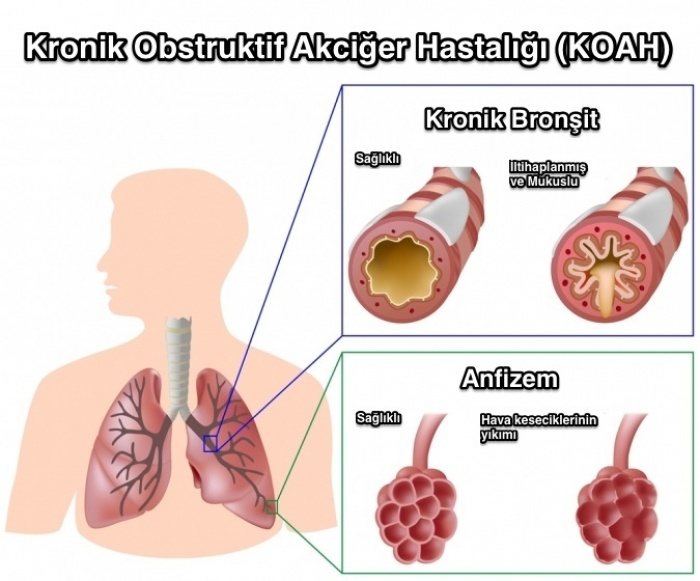 koah lı akciğer ile ilgili görsel sonucu