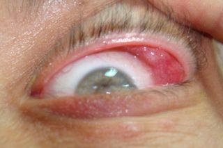 Kızarık göz
