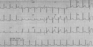 EKG sonuçları
