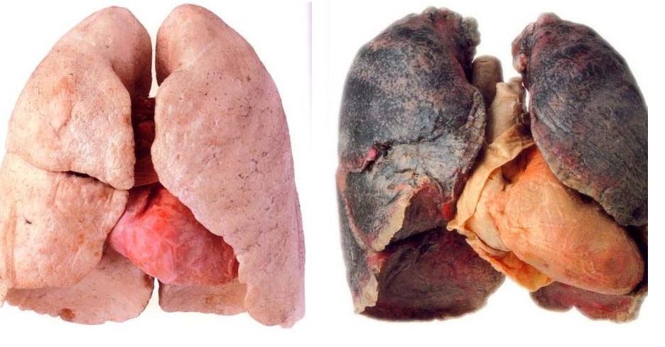 Akciğer Hastalıkları İçin Doğal Kür