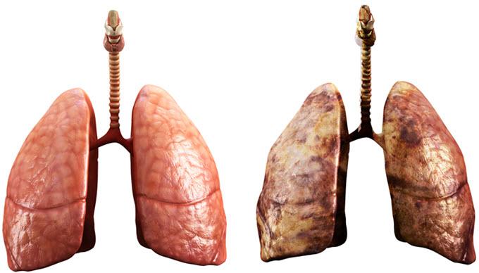 akciğerlerde mukus tedavisi