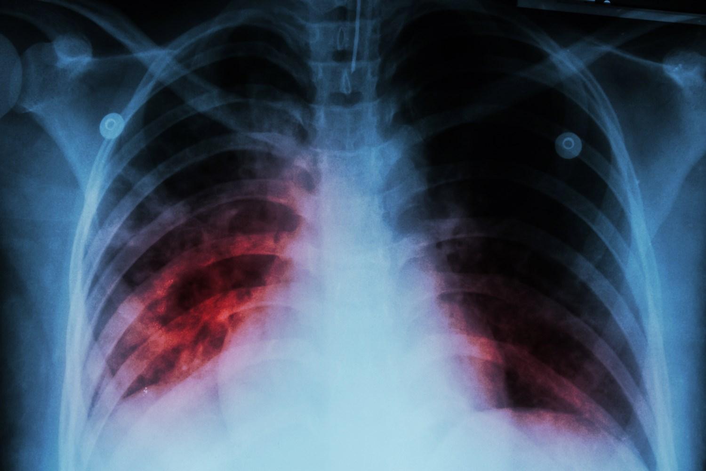 Akciğer Mukusları İçin Bitkisel Tedavi