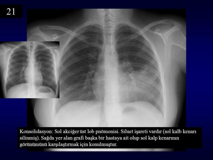 pnömoni akciğer grafisi ile ilgili görsel sonucu
